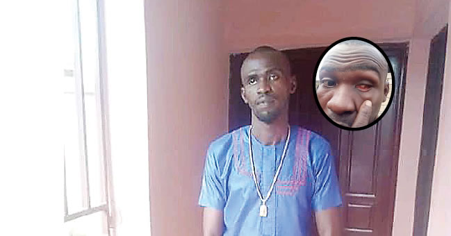 How SARS Took My Eye, Framed Me For Armed Robbery