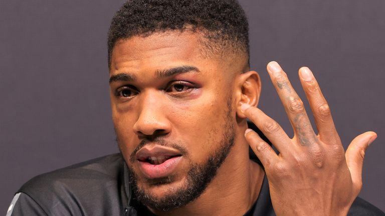 I Will Fight Tyson Fury Without My Belts – Anthony Joshua